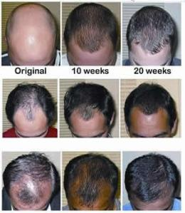 hair growth, men, hair products, intense, serum, natural, organic. tlc naturals, grow it, intense, hair cream, hair juice,
