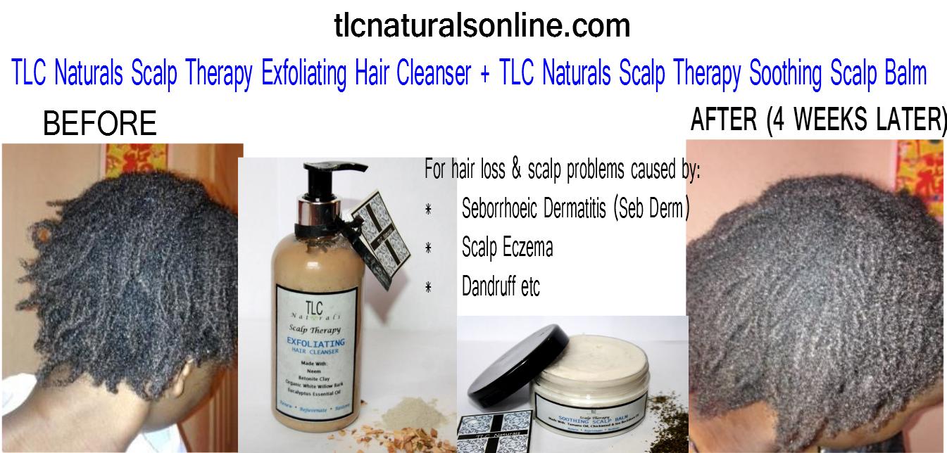 Just Natural Skin Care Hair Loss Reviews Skin Tag 5294508