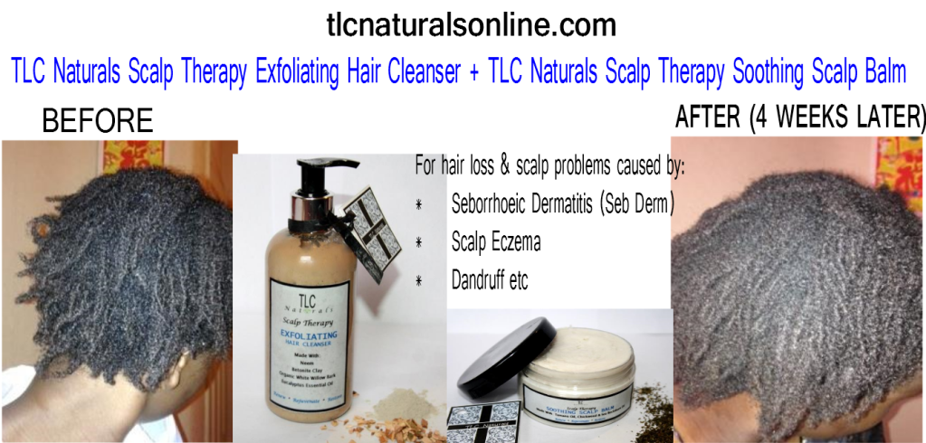 tlc naturals, tlc naturals reviews, tlc naturals hair product review, tlc naturals scalp therapy reviews, scalp therapy, scalp therapy reviews, hair products, seborrhoeic dermatitis, scalp dermatitis, scalp eczema, hair loss, grow hair, hair growth, products for , dry itchy scalp, scalp, eczema, dandruff, sieta,